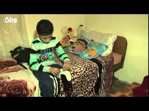 الطفل إبراهيم.. بترت الحربُ ساقه وأصبح اللعب بالكرة حلمًا صعب المنال