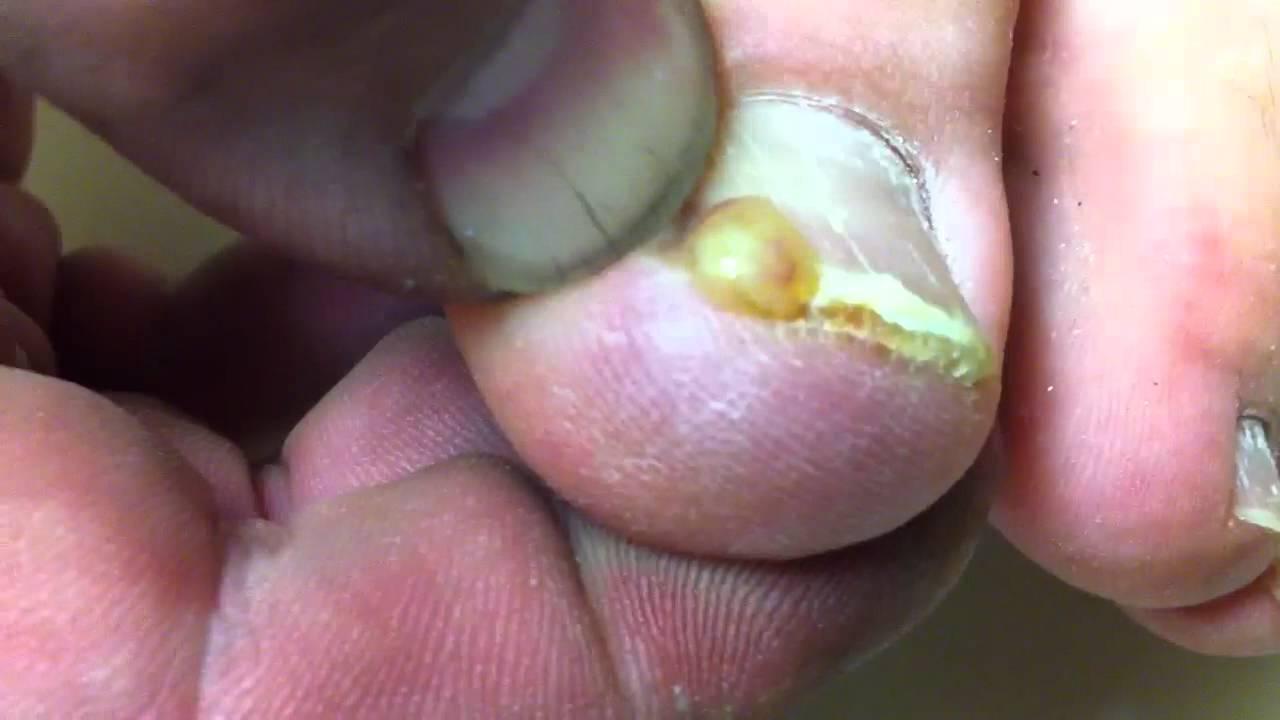 Erotic micro thong