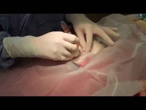 Rat Spay surgery (start to finish)