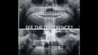 My Journey Through Jaw Surgery