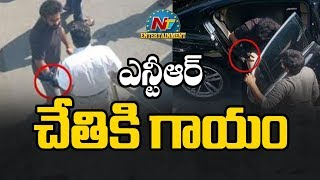 After Ram Charan, Jr NTR Suffers Right Hand Wrist Injury!..