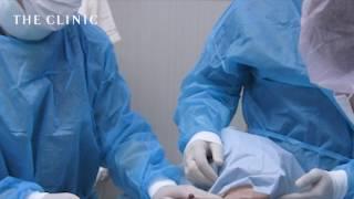 脂肪注入術後の圧迫やマッサージ