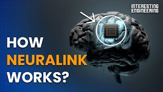 How Neuralink works