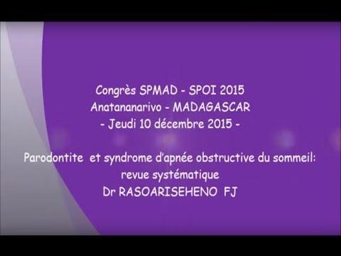 Parodontite et syndrome d'apnée obstructive du sommeil revue systématique Dr RASOARISEHENO FJ
