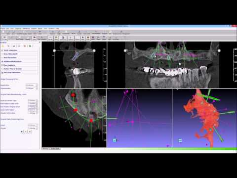 guidemia dual scan 04 error simulation and prediction mp4