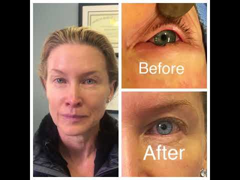 Left Lower Eyelid Skin Cancer Reconstruction Surgery