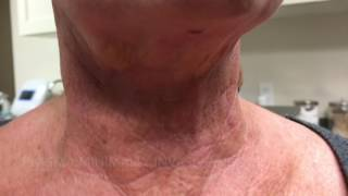 Results from Plasma Minimally Invasive Neck Lift at 6 days after procedure!