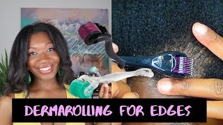 Why I STOPPED dermarolling after shaving my BALD EDGES. Will I do it again? TRACTION ALOPECIA