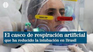 Un casco brasileño de respiración artificial reduce intubación en un 60 % | EL MUNDO
