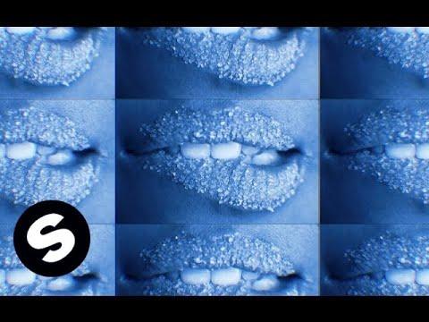 Pep & Rash x Shermanology - Sugar (Official Music Video)