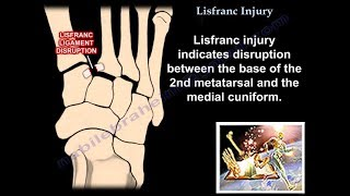 Lisfranc Injury - Everything You Need To Know - Dr. Nabil Ebraheim