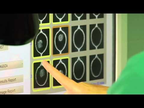 Quirón Zaragoza incorpora Eeva para seleccionar los mejores embriones en Fecundación in vitro