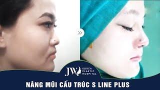 Nâng mũi cấu trúc S Line Plus cải thiện khuyết điểm mũi như thế nào?