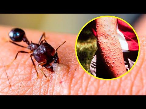 Некои убиваат за само неколку минути - кои се најсмртоносните инсекти во светот?
