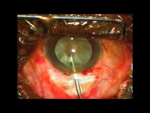 Sutureless ECCE Overview---Fishhook