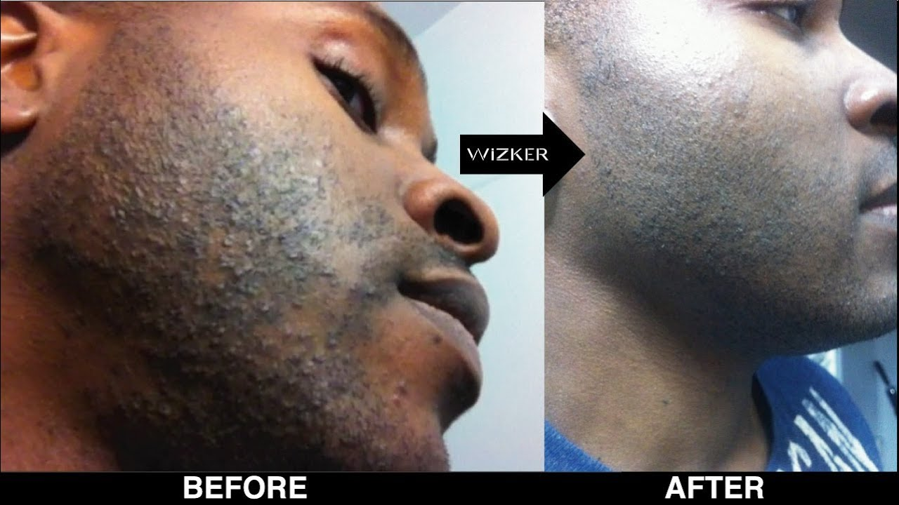 Razor Bumps Watch This Before You Shave Youtube