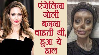 Angelina Jolie जैसी दिखने की चाहत में करा चुकी हैं 50 surgeries, हुआ ऐसा हाल | वनइंडिया हिंदी