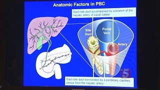 New Hope For PBC Liver Disease