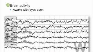Brain Activity During Sleep