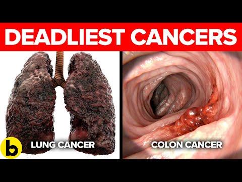 Кои се 7-те најсмртоносни видови рак?