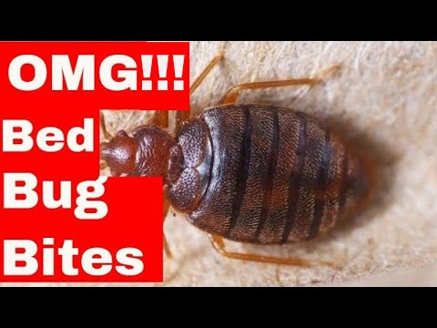 5 Unusual Hacks To Dramatically Cure Bed Bug Bites (Easy to Follow Tips)v