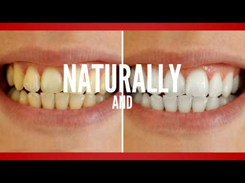 Simple Ways To Whiten Teeth Naturally
