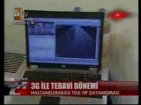 Türkischer Beitrag zum Thema Telehealth