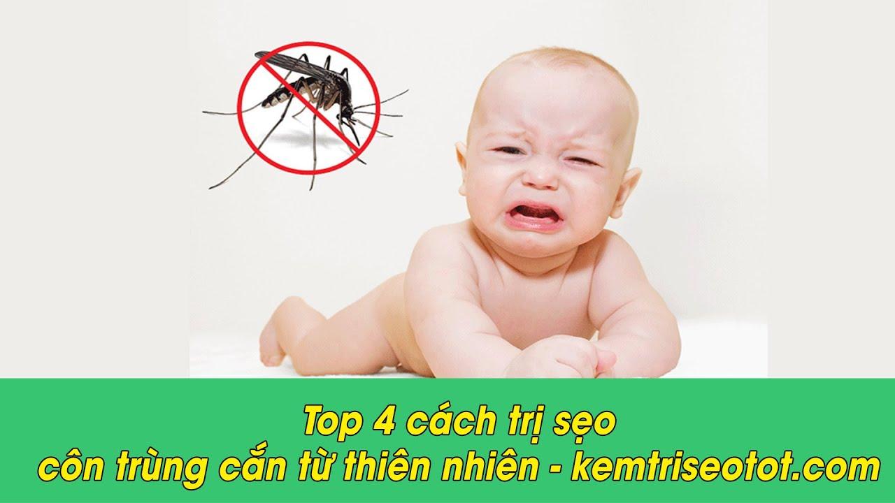 Top 4 cách trị sẹo côn trùng cắn từ thiên nhiên - kemtriseotot.com