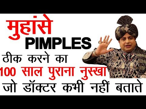 How To Get Rid of Pimples & Acne ''Permanent Solution'' : Sanyasi Ayurveda