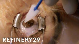 What Getting Laser Eye Surgery Is Really Like | Macro Beauty | Refinery29