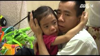 VTC14_Cuộc sống của Nguyễn Đức  - 25 năm sau cuộc phẫu thuật
