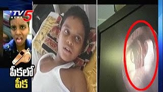 Doctors Remove Whistle From Boy's Lungs..