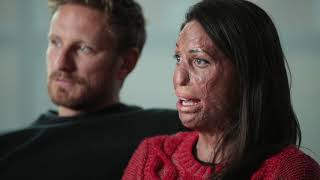 Turia Pitt, burn survivor and recipient of skin grafts