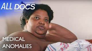 The 600 Pound Mom - Dominique Lanoise | Extraordinary People Documentary | Documental