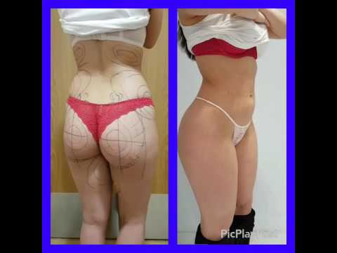 BBL (Brazilian Butt Lift, Fat transfer to Buttocks) with 360 degree and inner thigh gap lipo