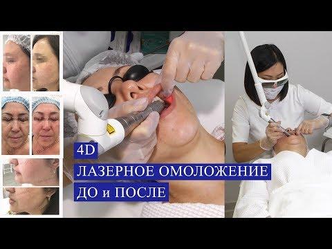 4D омоложение лица ЛАЗЕРОМ (Fotona). ДО и ПОСЛЕ!!! photo