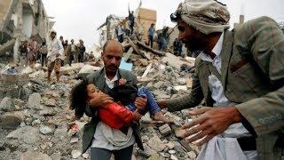 Yemen war, the worst humanitarian crisis after World War II