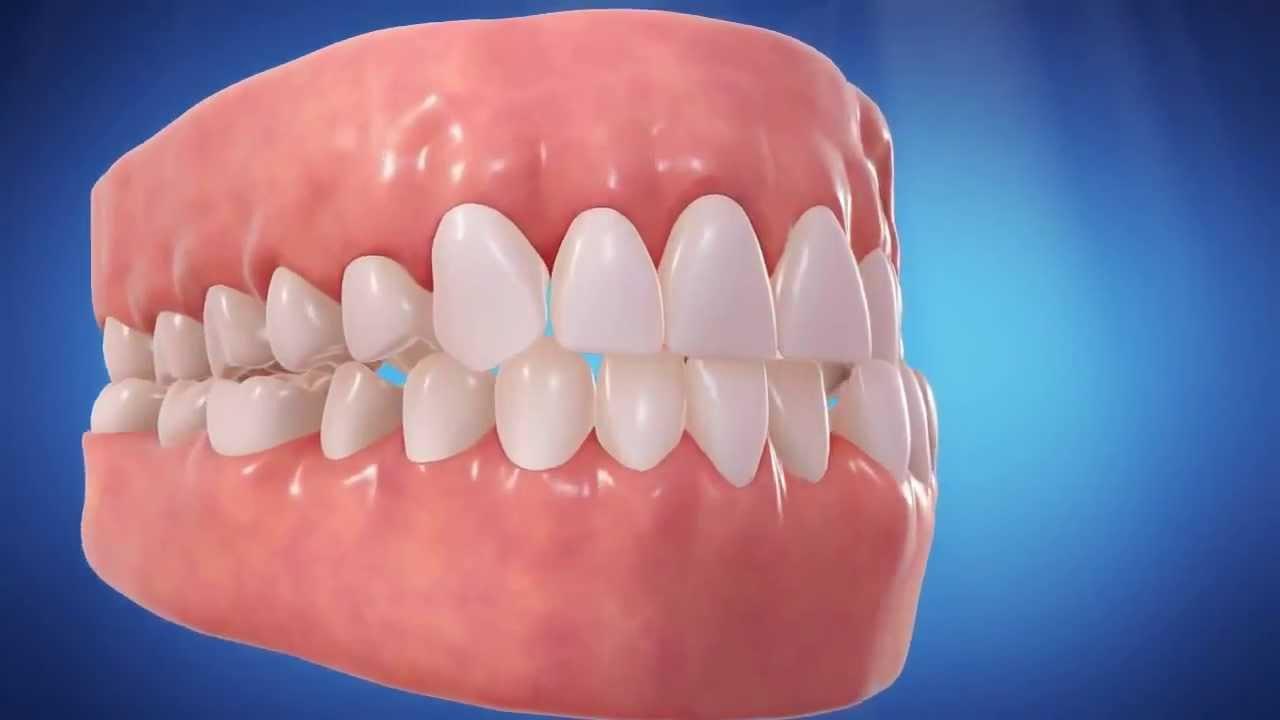Straight Talk About Crooked Teeth - Gupta Orthodontics ...  Straight Talk A...