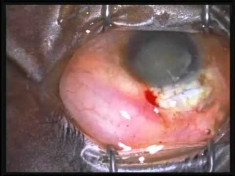 MSICS (nuclear cataract) performed by Glenn Strauss, M.D.
