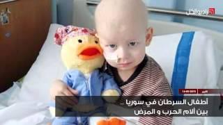 أطفال السرطان في سوريا... بين آلام الحرب والمرض -