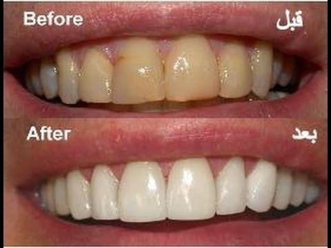 خلطات طبيعية لتبيض الاسنان Youtube