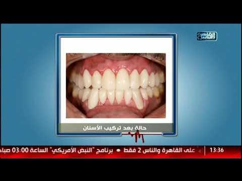القاهرة والناس | الدكتور مع أيمن رشوان الحلقة الكاملة 15 أغسطس