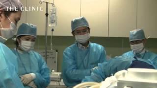 脂肪吸引で使用する麻酔と脂肪吸引部位について