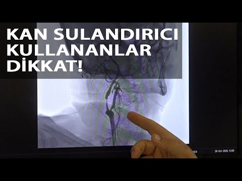 Prof. Dr. Zülfikar Arlıer: Kan sulandırıcı kullanan hastalarda…