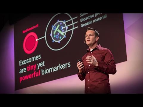 New nanotech to detect cancer early   Joshua Smith