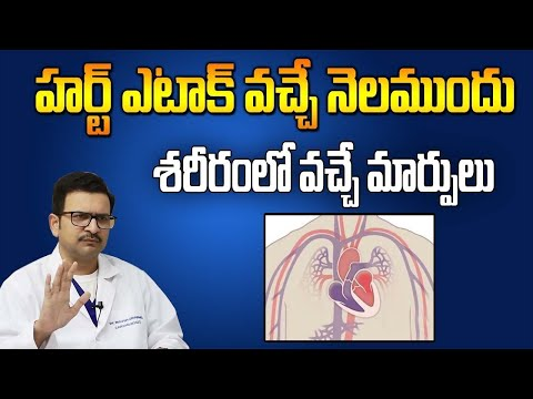 Symptoms of Heart Attack and Precautions for By Pass || Movva Srinivas || SumanTV  healthcare