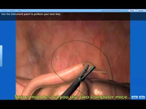 SIMTICS Medical Simulation Showcase - Laparoscopic Appendectomy