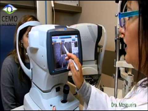 Presentación Microscopia Especular - CEMO Oftalmología - Dra. Mosqueira