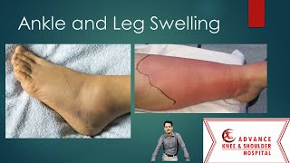 Top 10 causes of Ankle and Leg Swelling