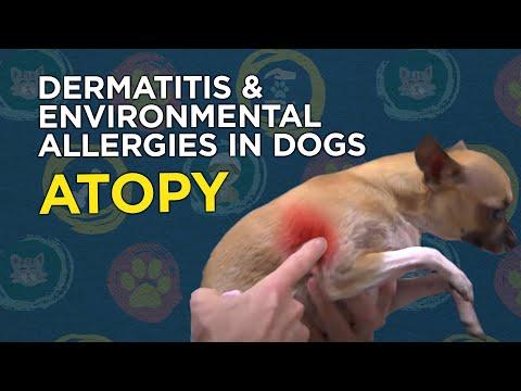 Atopični dermatitis